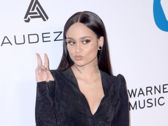 Kehlani Forced To Postpone European Tour Dates For 'Unexpected Surgery'